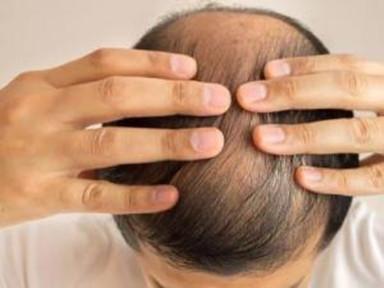日常预防脱发的六大方法