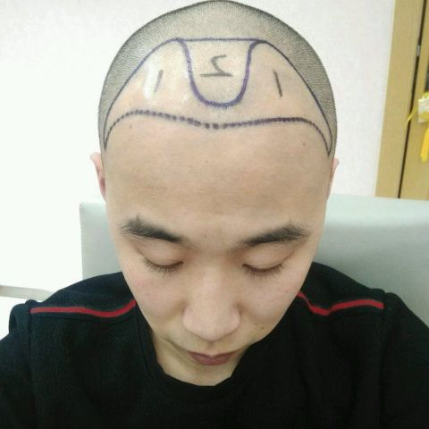秃顶植发前