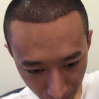 三亚维多利亚秃顶植发案例分享