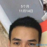 哈尔滨博士园秃顶植发案例分享