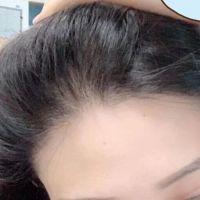 深圳联合丽格发际线种植效果怎么样呢
