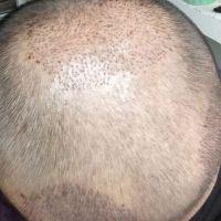 石家庄蓝山秃顶植发术后分享