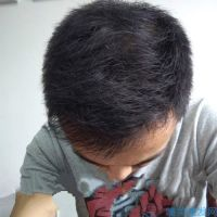 杭州新生秃顶植发效果怎么样呀