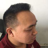 上海新生秃顶植发一年的最终效果