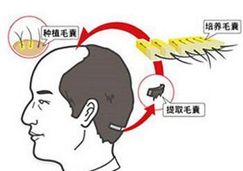 解析新生植发的三大植发技术优势