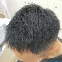 太原碧莲盛秃顶植发,最终效果很棒