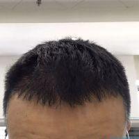 秦皇岛纪辉头顶加密种植,都说我变年轻了