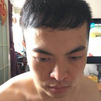 北京八大处秃顶植发成活率很高