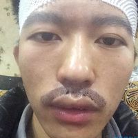 上海时光胡须种植,看着有男人味了