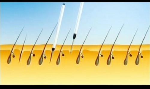大麦微针植发的PSE植发技术怎么样?