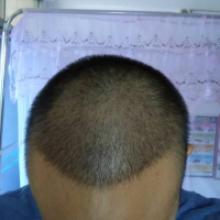 成都美立方秃顶植发案例分享