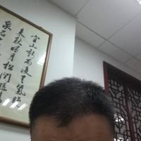 北京南加秃顶植发案例分享