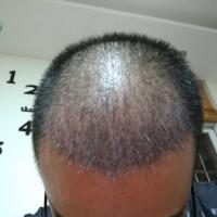 郑州碧莲盛秃顶植发,头发长得很好