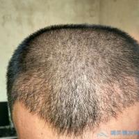 重庆军科发际线种植,整体很自然