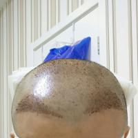 河南协和头顶加密种植案例分享