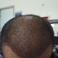 济南名韩秃顶植发案例分享来了
