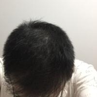 合肥长庚秃顶植发头发很稳固