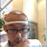 广州海峡秃顶植发长势很不错