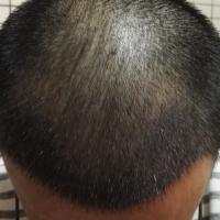 佛山禅城植发科发际线种植案例分享