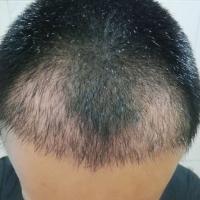 东莞维多利亚秃顶植发效果比较满意