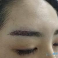 北京新生植发眉毛种植,眉形很喜欢