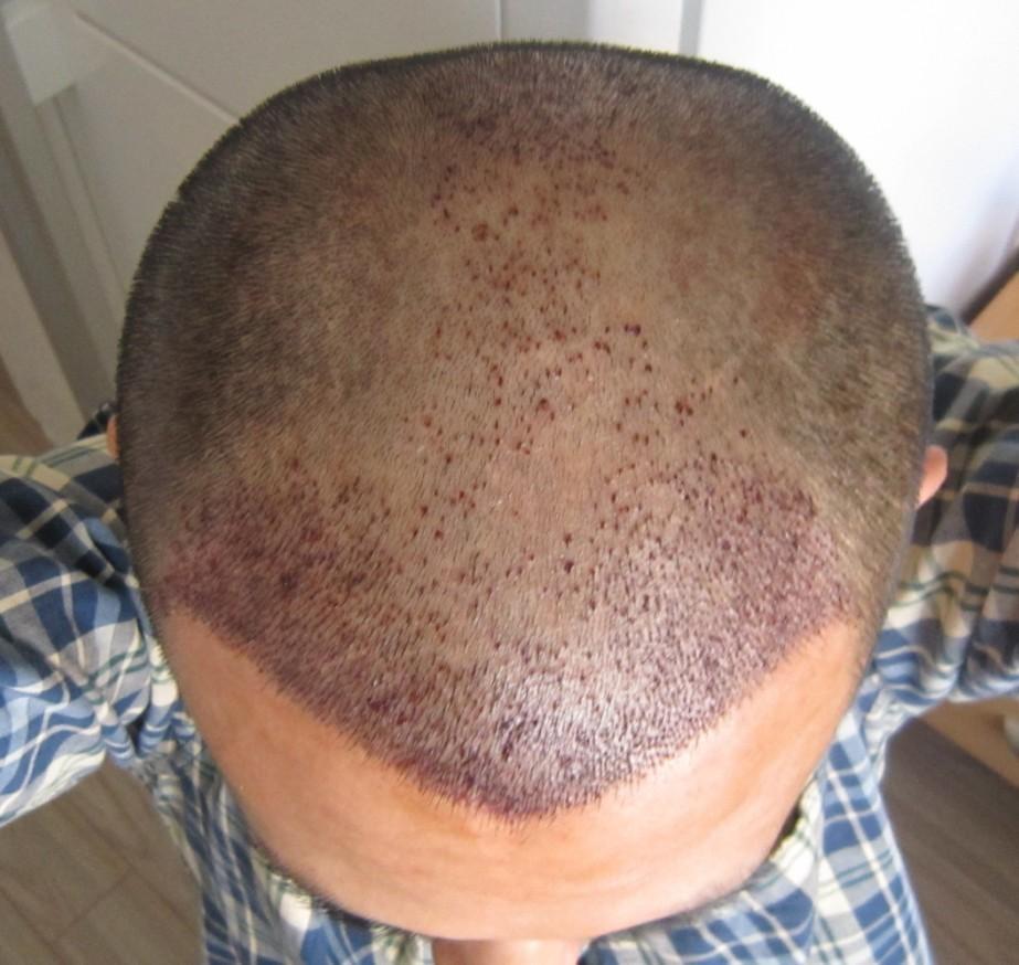 长沙新生植发靠谱吗?价格多少?