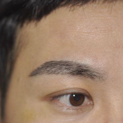眉毛种植后