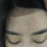 郑州华山眉毛种植案例分享