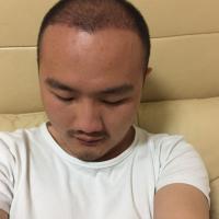 柳州贞韩秃顶植发,解决了我很大的困扰