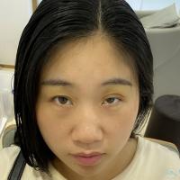 西宁华美眉毛种植案例分享