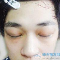 新疆整形美容中心眉毛种植案例分享