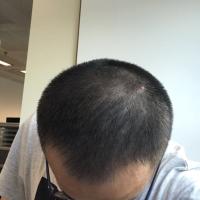 哈尔滨美佳娜头顶加密种植,植发很成功