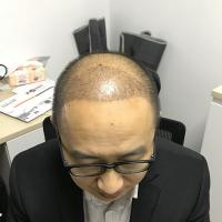 杭州天大秃顶植发案例分享