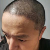 南宁发之源发际线种植案例分享