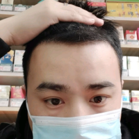 南京植发发际线种植,术后效果显脸小了