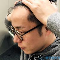 武汉爱思特发际线种植,头发长势喜人