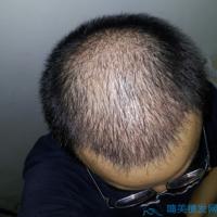 河南现代中医头顶加密种植案例分享