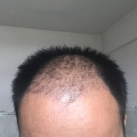 黑龙江瑞丽秃顶植发案例分享
