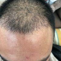 厦门颜施发际线种植,头发和原生发融合的非常好