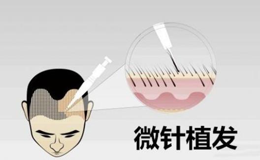无锡新生微针植发技术种植一毛囊多少钱?
