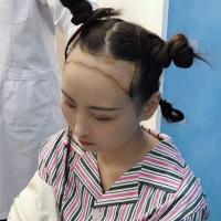 南京肤康发际线种植挺满意的