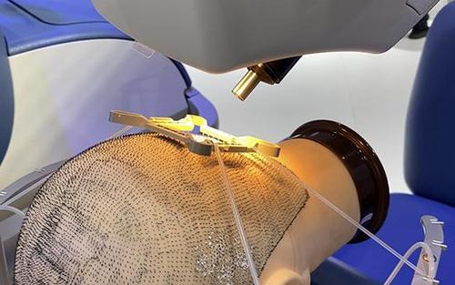 东莞新生医院做脂溢性脱发植发治疗费用一般多少?