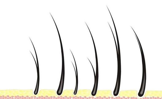 阴毛种植有危险吗?对小便有没有影响呢?