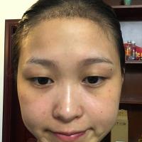 杭州肤康发际线种植,植发很成功
