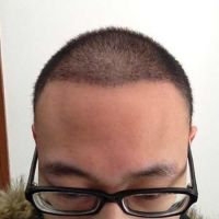 哈尔滨第二一植发际线,头发看起来很自然