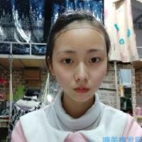 深圳丽港丽格发际线种植,脸一点点变小了