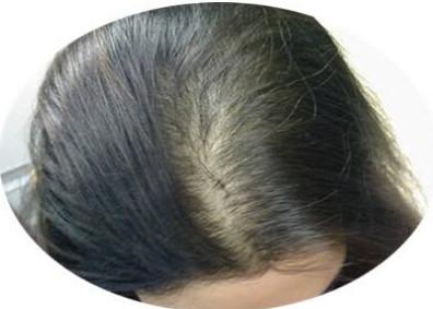 头发越来越稀疏怎么办?让头发变多的方法有哪些?
