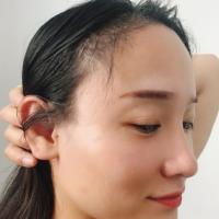 苏州肤康发际线种植,对现在的头发特别满意