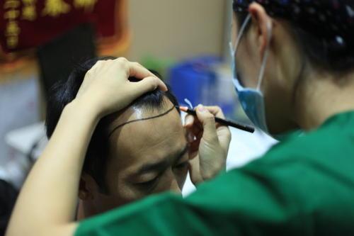 头发加密和普通植发有什么区别?