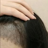湖南长沙方泰发际线种植,头发长得很不错